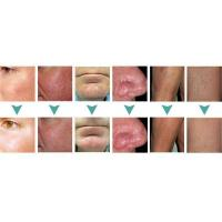 Spider vein removal picture