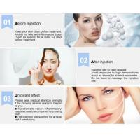 China CE Marked Cross Linked Hyaluronic Acid Fillers Restore Youthful Skin Injection Derm Deep Wrinkles for beauty salon wholesale