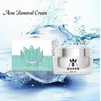 China Best Freckle Fade Cream for Skin Whitening and Melasma Treatment wholesale