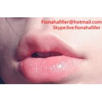 Hyaluronic Acid filler Used as a Lip Filler in Plastic Surgery