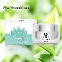 China Skin Care Whitening Cream for Acne Scar Removal on sale