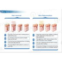 3 Working Principle of Super SHR IPL Laser hair removal.jpg
