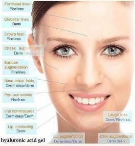 China Chin Augmentation Dermal Fillers Nasolabial Folds Hyaluronic Acid Plastic Surgery wholesale